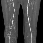 CT-Angiographie Oberschenkel-Knie