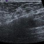 Ultraschall geleitete Brustbiopsie