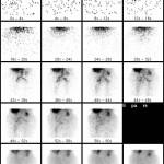 Skelettszinitgraphie_Radionuklidangiographie