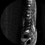 MR Lendenwirbelsäule sagittal
